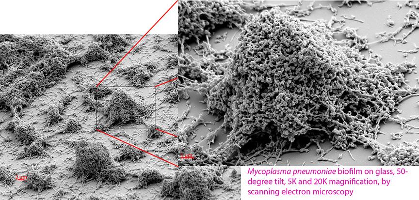 How To Treat Mycoplasma Naturally