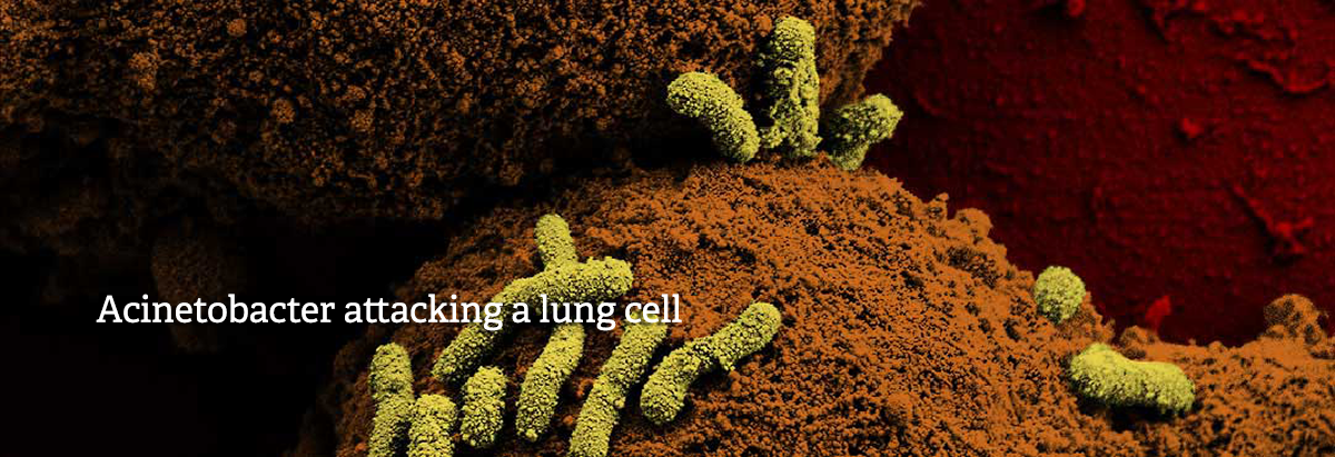 Acinetobacter attacking a lung cell