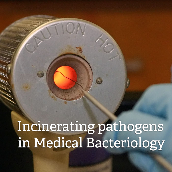 Incinerating pathogens in medical bacteriology